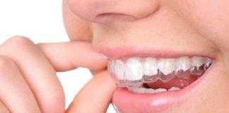 ortodoncia invisalign madrid