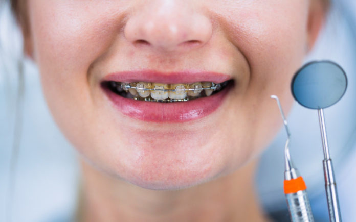 primera visita al ortodoncista