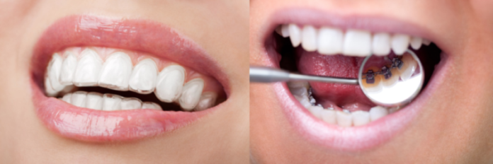 ortodoncia invisalign en madrid
